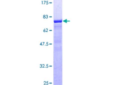 SEPT9 / Septin 9 Protein