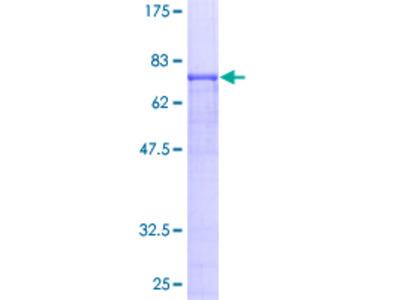APP / Beta Amyloid Precursor Protein