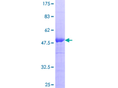 RGS20 / RGSZ1 Protein