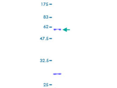 SLC25A17 Protein