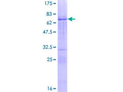 ALX1 Protein