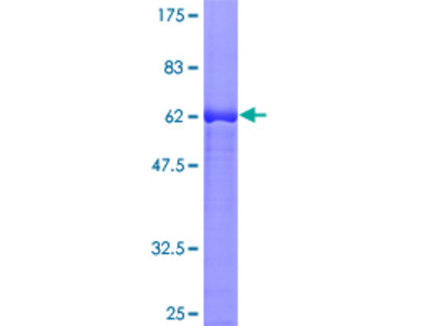 LCMT1 Protein