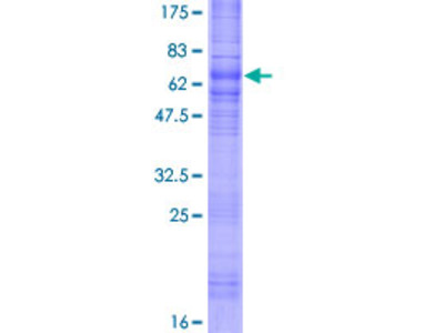 SSTR1 Protein