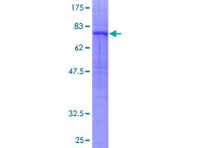 GPR39 Protein
