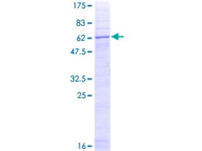 STEAP1 / STEAP Protein