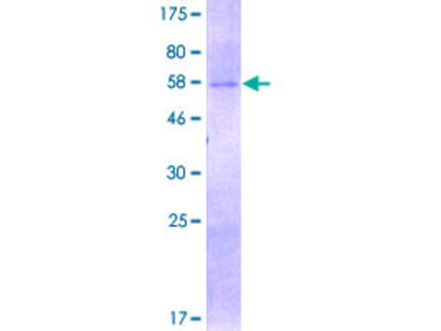 SIRT4 / Sirtuin 4 Protein
