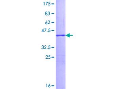 SNCG / Gamma-Synuclein Protein