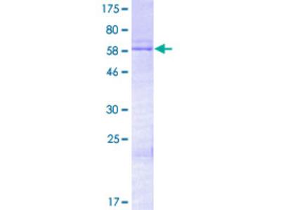 HOXD13 Protein