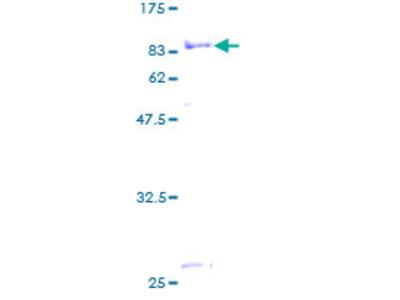 MTMR9 Protein
