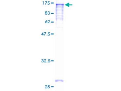 NAT10 Protein