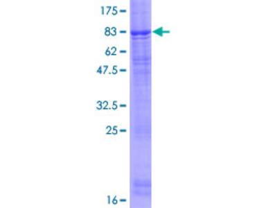 FBXL7 Protein