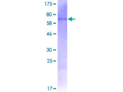 SIRT7 / Sirtuin 7 Protein