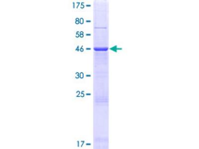 AKAP14 Protein