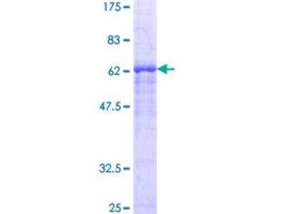 SIRT2 / Sirtuin 2 Protein