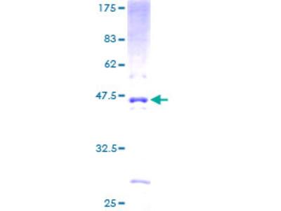 PCA1 / ALKBH3 Protein