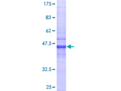 CRADD / RAIDD Protein