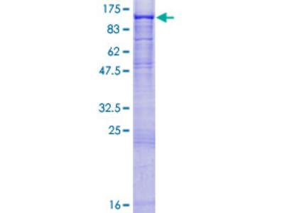 ST14 / Matriptase Protein