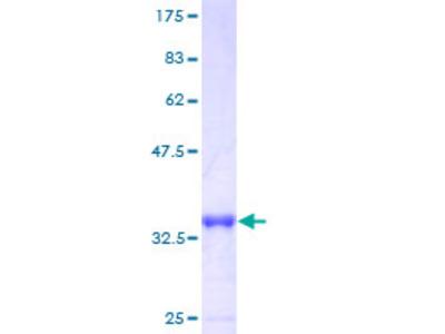 LSM6 Protein