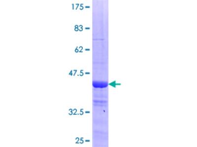 CCDC115 Protein