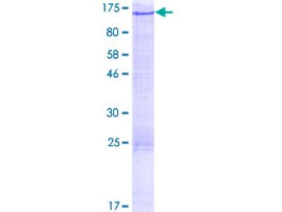 ALS2CL Protein