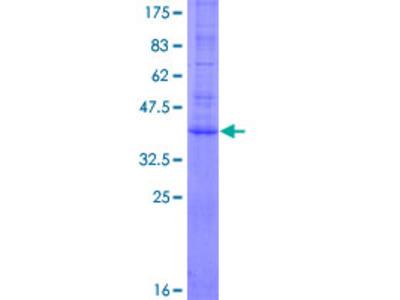 AGTRAP / ATRAP Protein