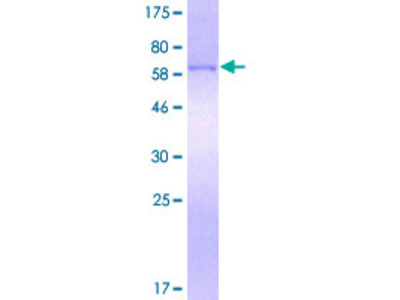SFTPD / Surfactant Protein D Protein