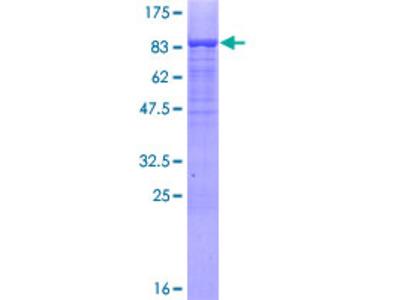 MSL3L1 / MSL3 Protein