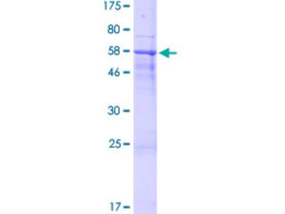SPACA1 Protein
