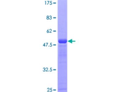 SSSCA1 / p27 Protein