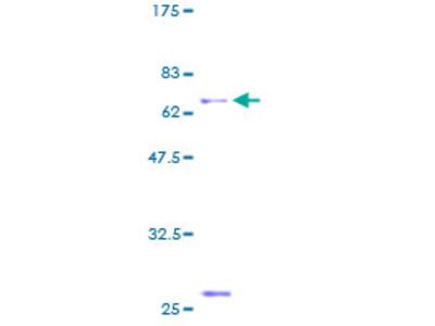 ACRV1/Intra-Acrosomal Protein Protein