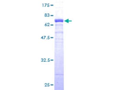 FBXO4 / FBX4 Protein