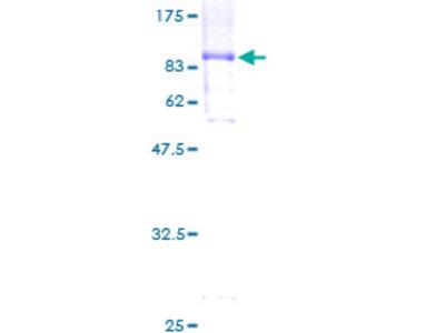 JADE1 / PHF17 Protein