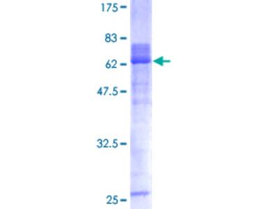HOXA1 Protein