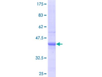 SULF2 / Sulfatase 2 Protein
