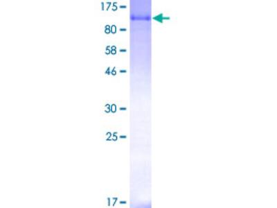 MDM2 Protein