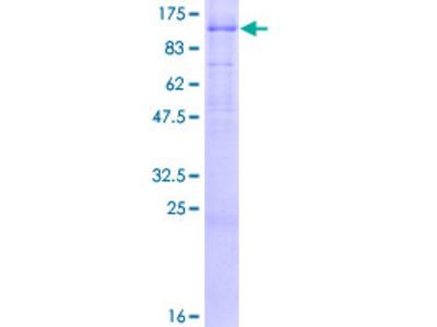 AREL1 / KIAA0317 Protein