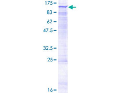 NADSYN1 / NAD Synthetase Protein
