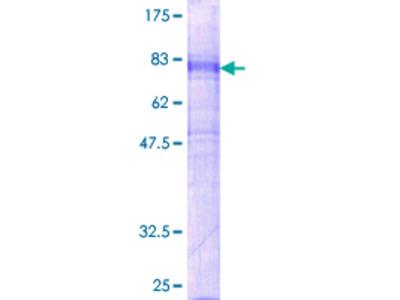 GPR151 Protein