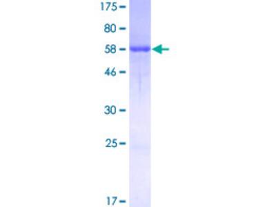 BABP / AKR1C2 Protein