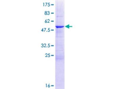 HSCB Protein