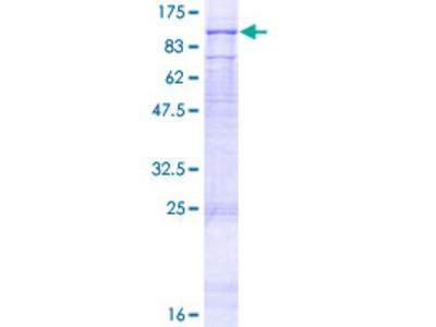 FANCM Protein