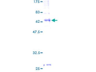 S1PR4 / SIP4 / EDG6 Protein