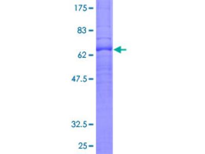 S1PR1 / EDG1 / S1P1 Protein