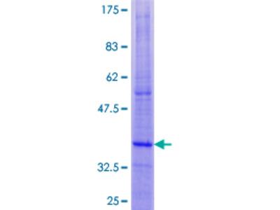 DAP12 Protein