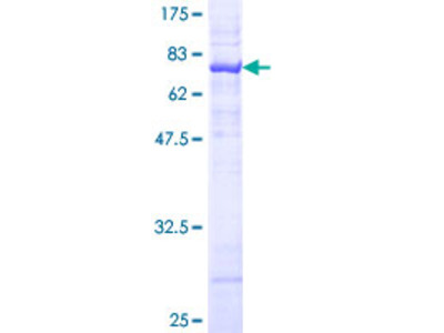ASS1 / ASS Protein