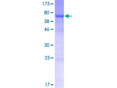 SRPX2 Protein