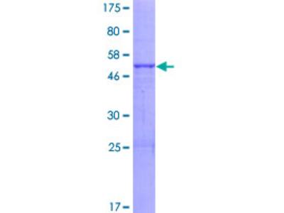 ABHD14A Protein