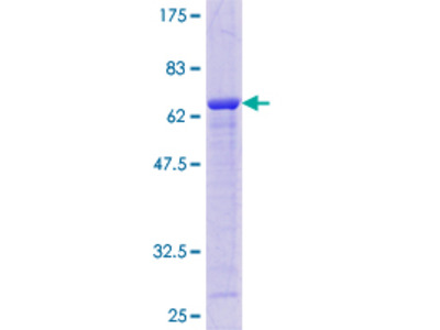 AKR7A2 / AFAR Protein