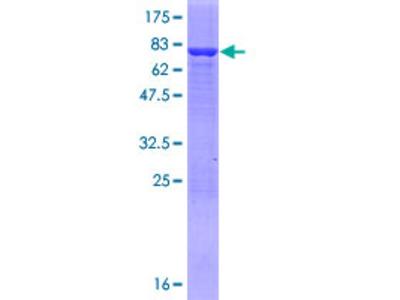 AMDHD2 Protein