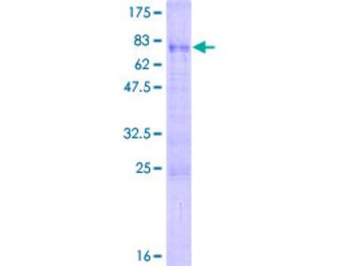 SNRNP48 Protein